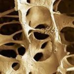 Osteoporosis: Better Screening, Treatment Policy Issues