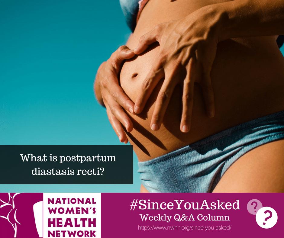 What Is Postpartum Diastasis Recti Nwhn